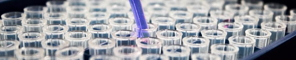 Eine Abbildung von mehreren                     Reagenzgläsern im Labor